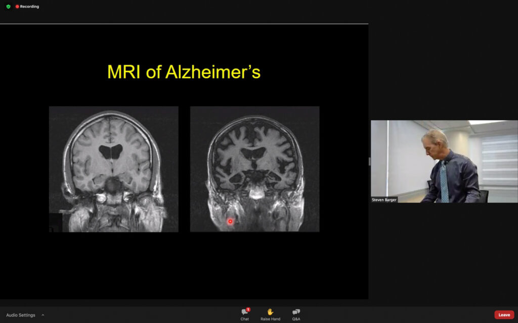 The brain scan of a normal brain (left) and an ALzheimer's brain (right) have differences in regards to loss of brain matter. (THE SIGNPOST/ ISRAEL CAMPA)