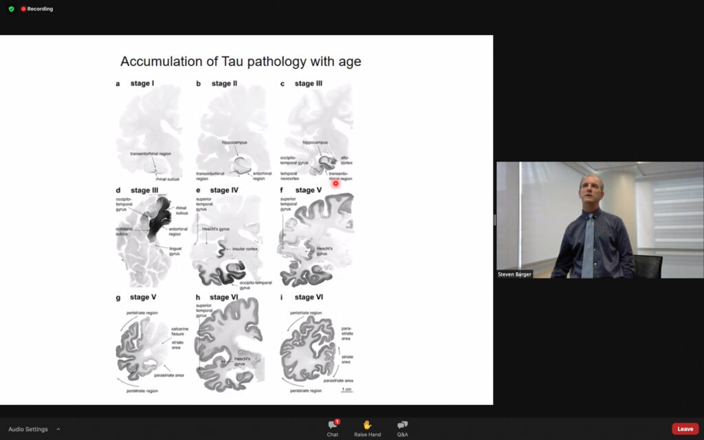 Barger addresses how over age, different parts of the brain are affected that cause Alzheimer's disease. (THE SIGNPOST/ ISRAEL CAMPA)